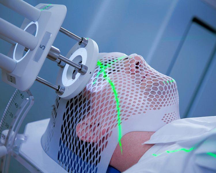 Лучевая терапия опухолей кожи